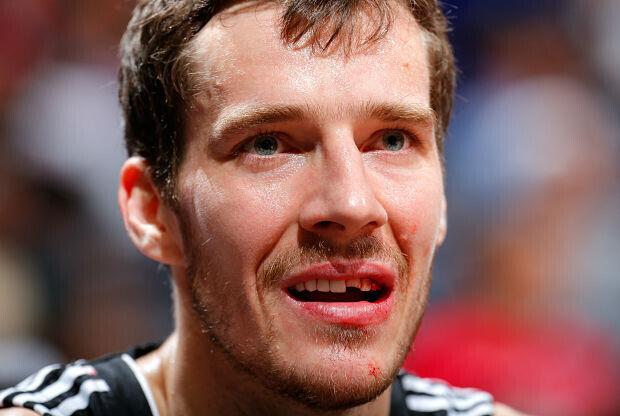 Goran Dragic con un diente roto